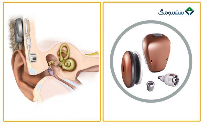 دستگاههای شنوایی انتقال استخوانی